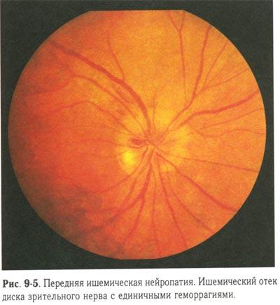 болезнь коатса форум Болезнь Коатса (ретинит) - симптомы, причины и лечение